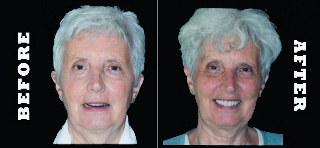 bioesthetic dentistry