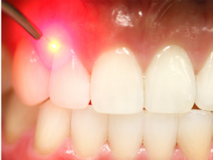 Laser Dentists Houston