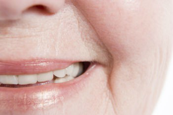 antiaging wrinkles around mouth