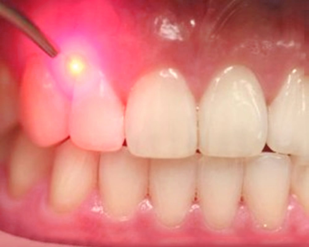 laser gum treatment