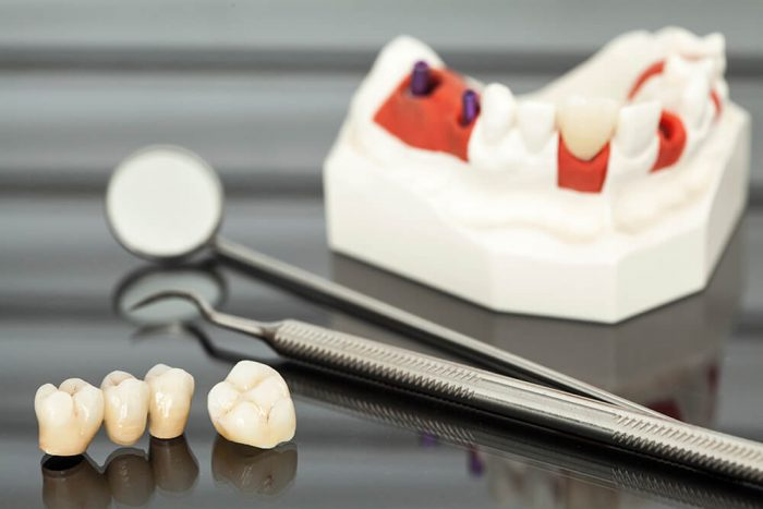 why dental crowns break?